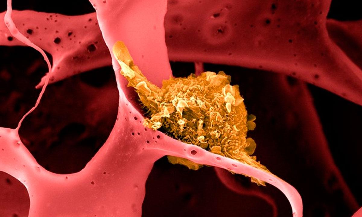 A vacina contra o câncer de mama é 100% eficaz em camundongos
